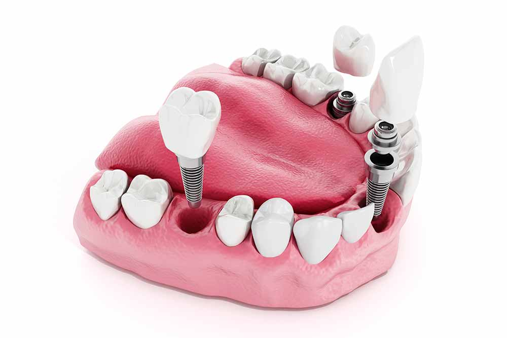 Dental Implant Treatments - Cairns Queensland