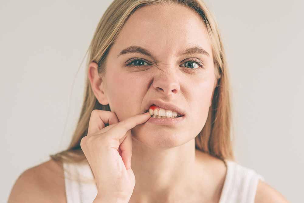 Gum Disease Treatments - Cairns Queensland