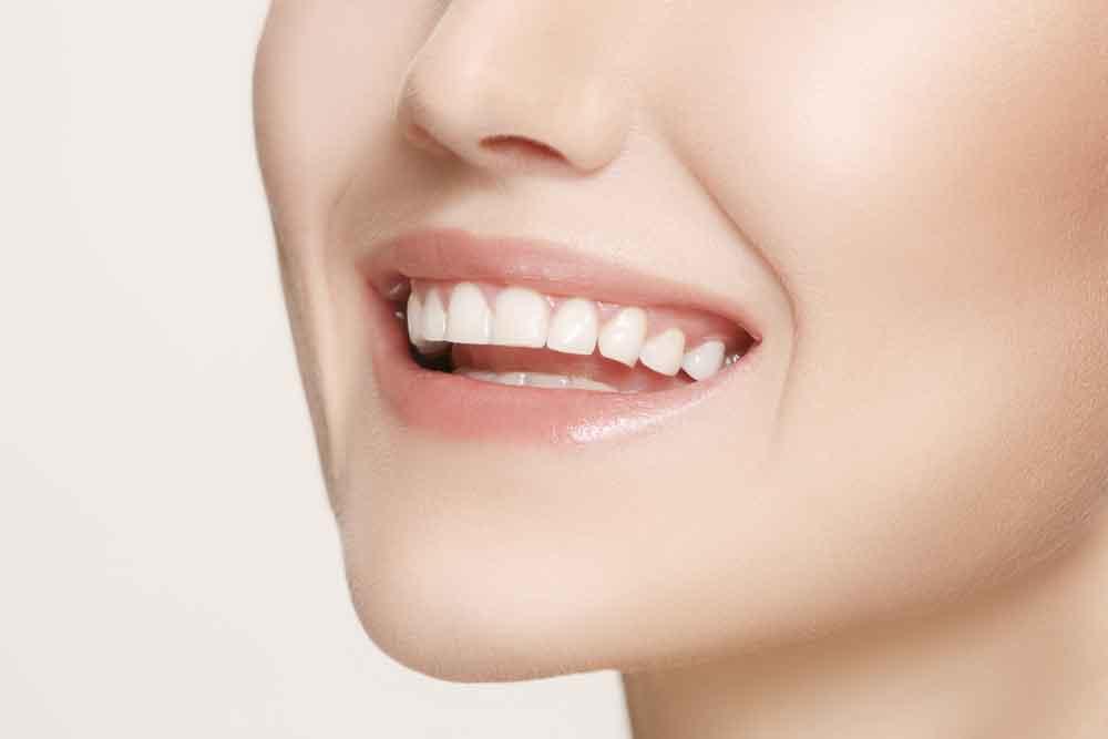 Teeth Whitening - Smithfield Dental, Cairns, Queensland