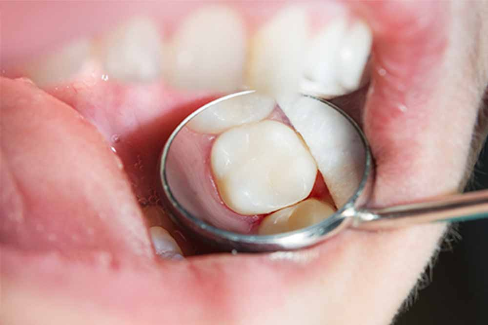 Tooth Fillings Treatments - Cairns Queensland