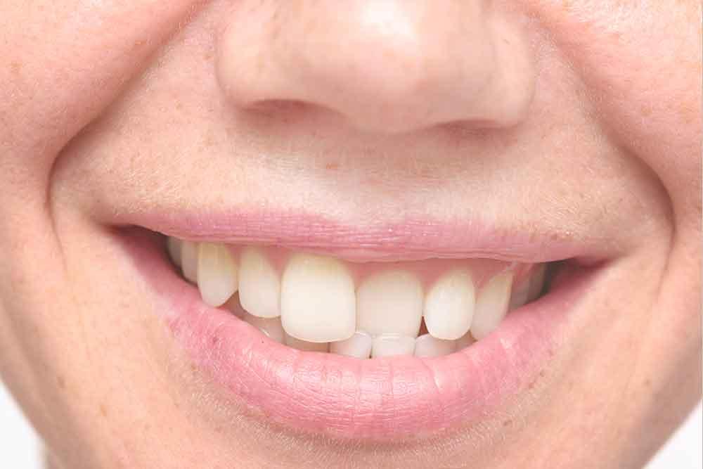 Crooked and Misaligned Teeth - Smithfield Dental