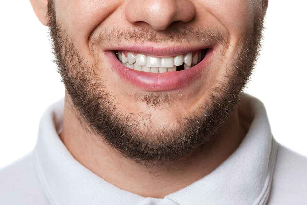 Missing Teeth Treatment - Smithfield Dental